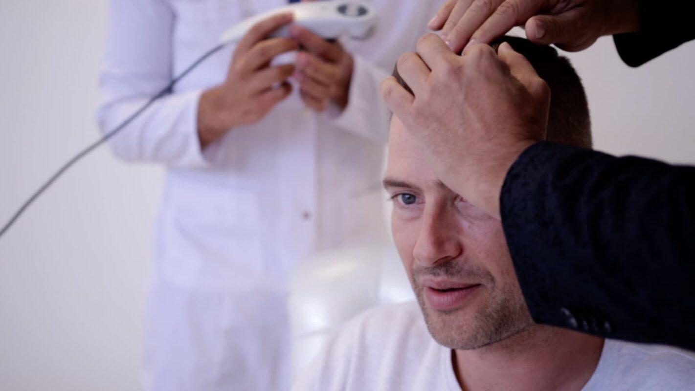 fue-ct-haartransplantatie