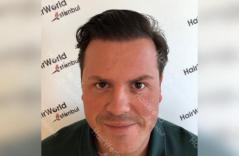 Ervaring HairworldIstanbul slide2