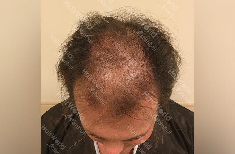 Ervaring HairworldIstanbul slide3