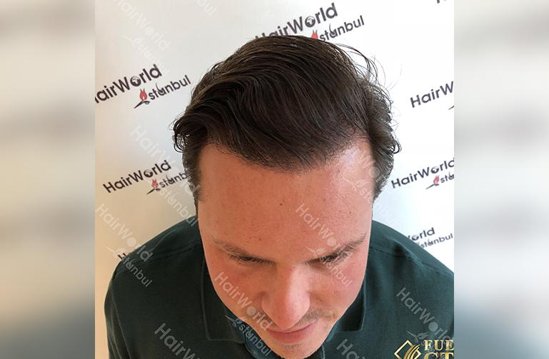 Ervaring HairworldIstanbul slide4