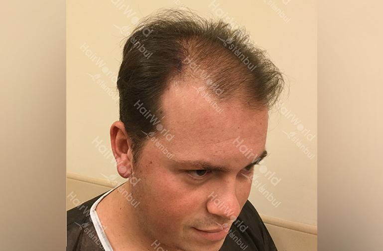 Ervaring HairworldIstanbul slide5