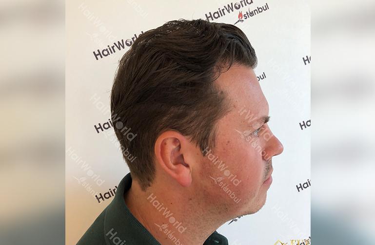 Ervaring HairworldIstanbul slide6