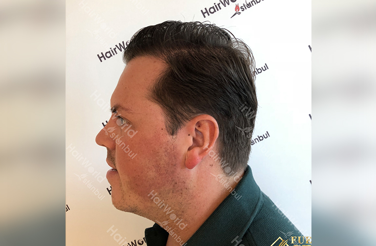 Ervaring HairworldIstanbul slide8