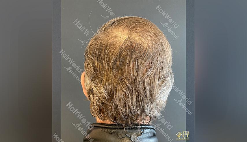 Ervaringen Hairworld Istanbul 10 2