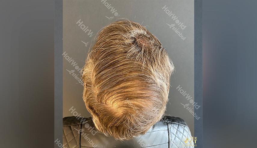 Ervaringen Hairworld Istanbul 12 2