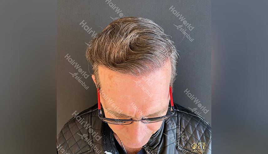 Ervaringen Hairworld Istanbul 4 2
