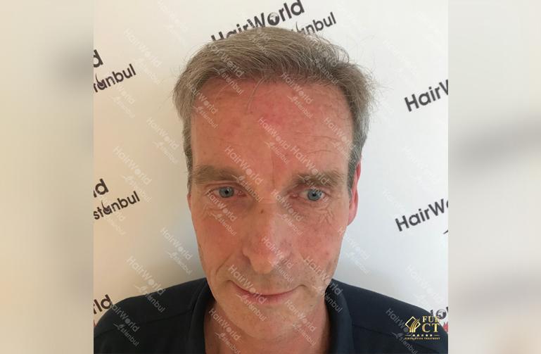 Ervaringen Hairworld Istanbul Grijs haar2