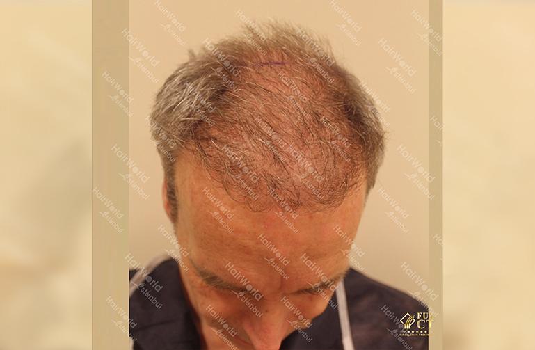 Ervaringen Hairworld Istanbul Grijs haar3