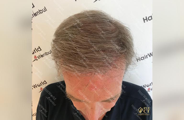 Ervaringen Hairworld Istanbul Grijs haar4