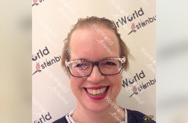 Ervaringen haartransplantatie vrouwen HairworldIstanbul1 1