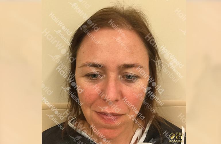 Ervaringen haartransplantatie vrouwen HairworldIstanbul1