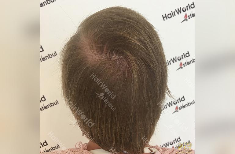 Ervaringen haartransplantatie vrouwen HairworldIstanbul10