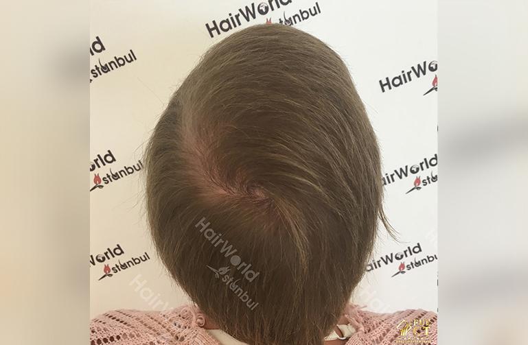 Ervaringen haartransplantatie vrouwen HairworldIstanbul12