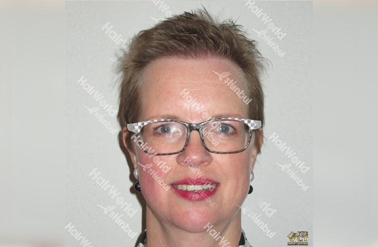 Ervaringen haartransplantatie vrouwen HairworldIstanbul2 1