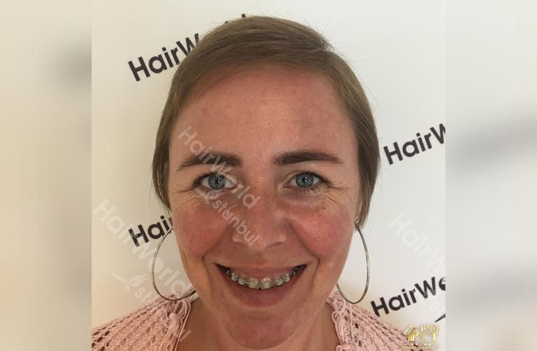 Ervaringen haartransplantatie vrouwen HairworldIstanbul2