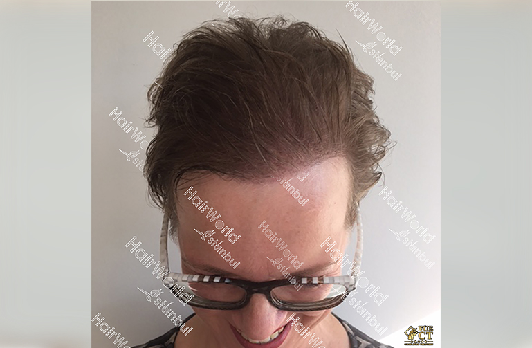 Ervaringen haartransplantatie vrouwen HairworldIstanbul4 1