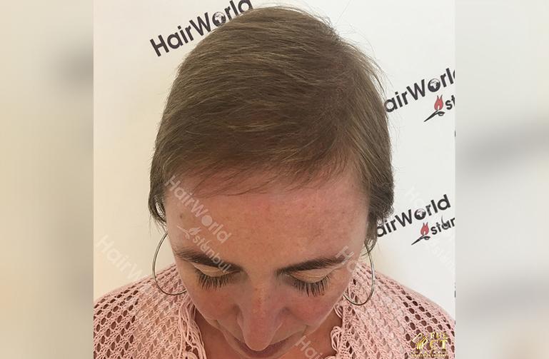 Ervaringen haartransplantatie vrouwen HairworldIstanbul4