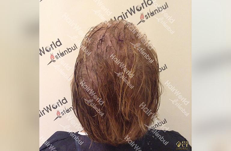 Ervaringen haartransplantatie vrouwen HairworldIstanbul5 1