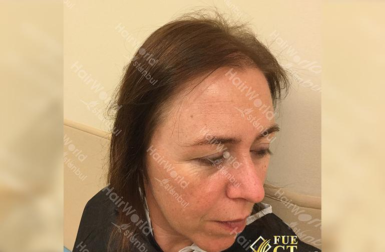 Ervaringen haartransplantatie vrouwen HairworldIstanbul5