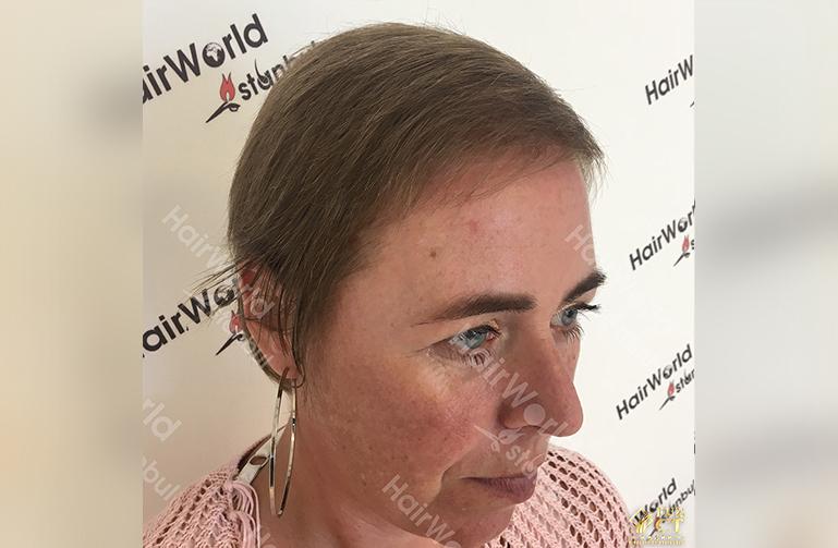 Ervaringen haartransplantatie vrouwen HairworldIstanbul6