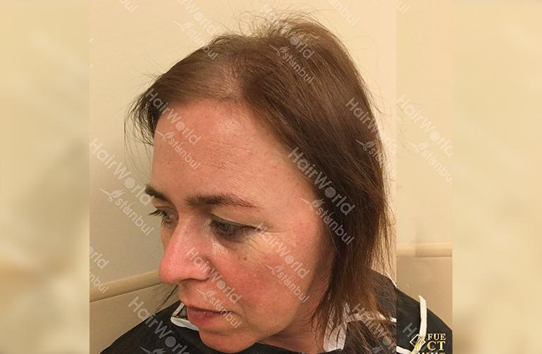 Ervaringen haartransplantatie vrouwen HairworldIstanbul7