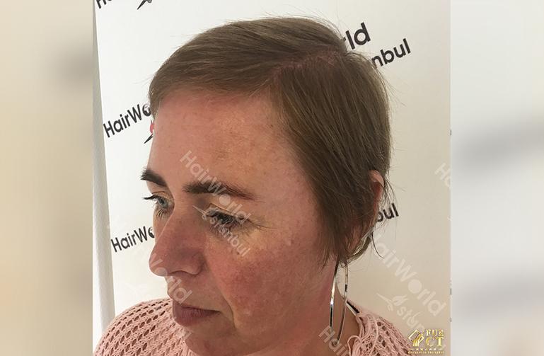 Ervaringen haartransplantatie vrouwen HairworldIstanbul8