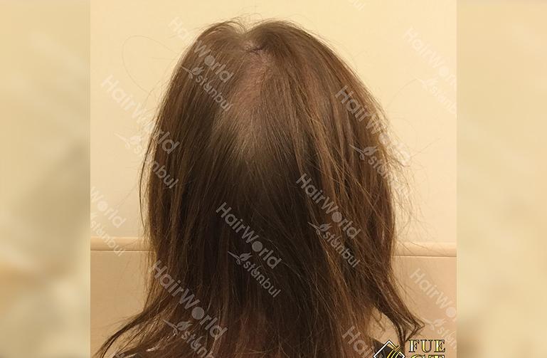 Ervaringen haartransplantatie vrouwen HairworldIstanbul9