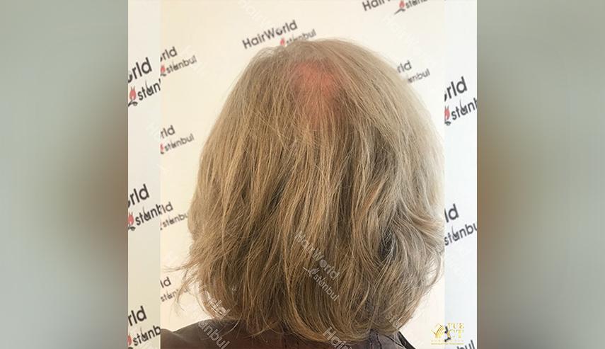 Grijs haar Hairworld Istanbul 10 2