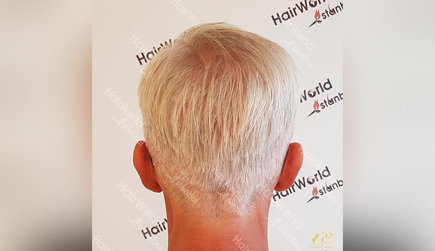 Grijs haar Hairworld Istanbul 10 3