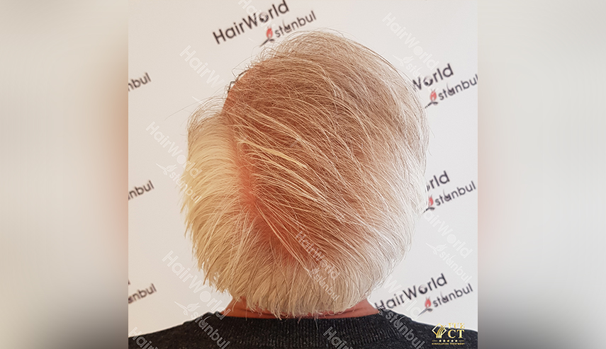 Grijs haar Hairworld Istanbul 12 3