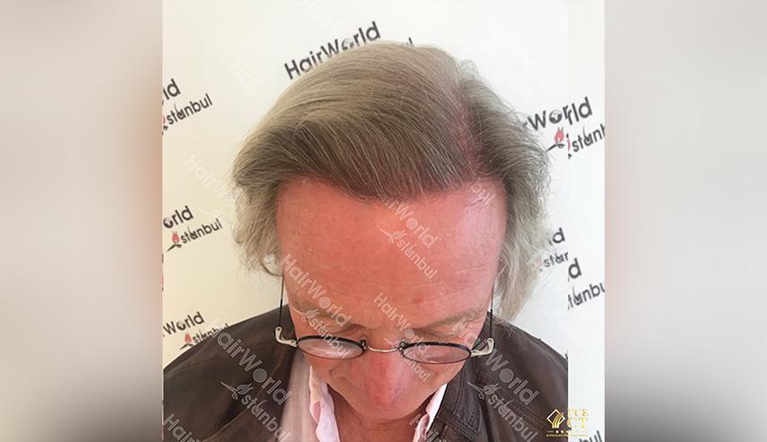 Grijs haar Hairworld Istanbul 4 2