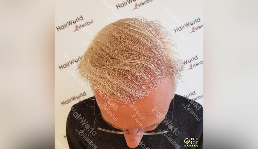 Grijs haar Hairworld Istanbul 4 3