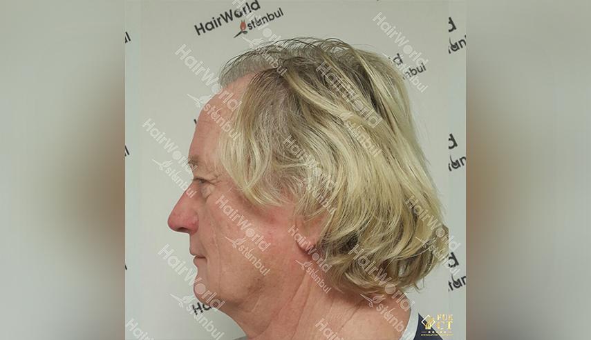 Grijs haar Hairworld Istanbul 5 2