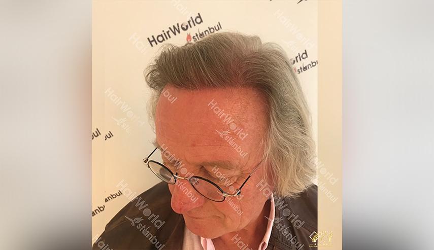 Grijs haar Hairworld Istanbul 6 2