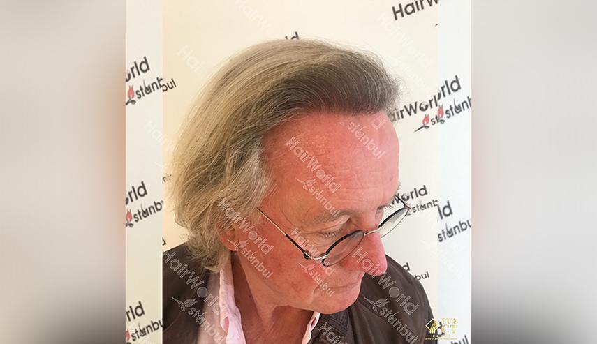 Grijs haar Hairworld Istanbul 8 2
