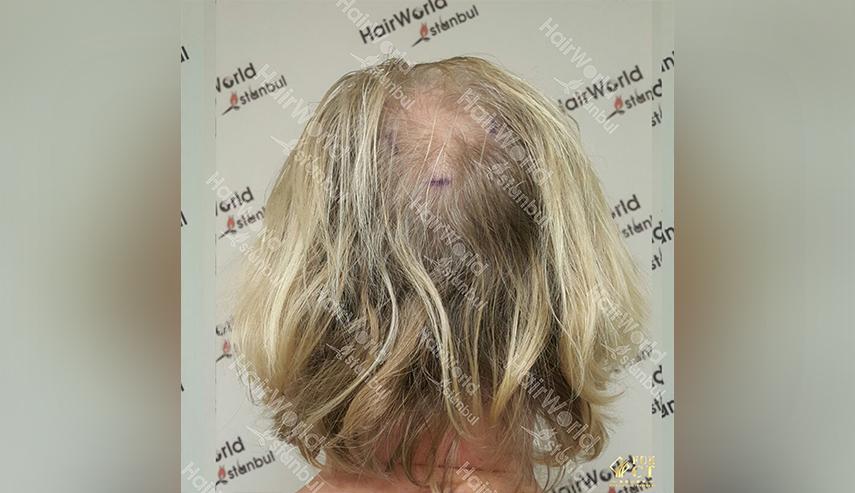 Grijs haar Hairworld Istanbul 9 2