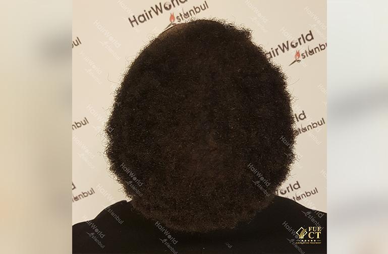 Kroeshaar haar Hairworld Istanbul12