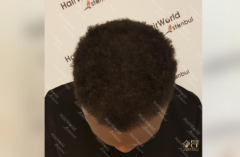 Kroeshaar haar Hairworld Istanbul4 1