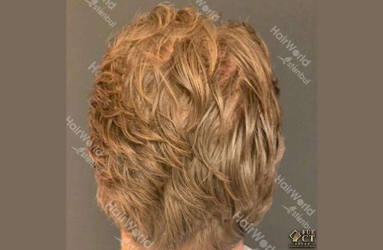 Ervaring Blond haar Hairworld Istanbu10