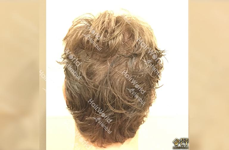 Ervaring Blond haar Hairworld Istanbu9