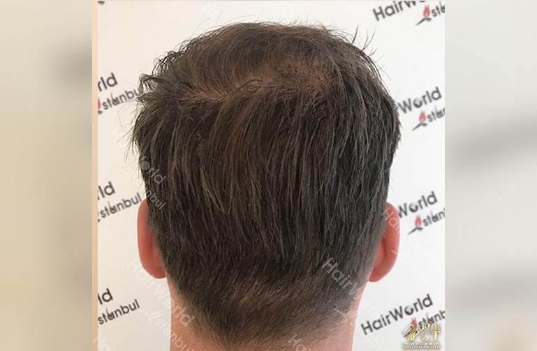 Ervaring Hairworld Istanbu After10