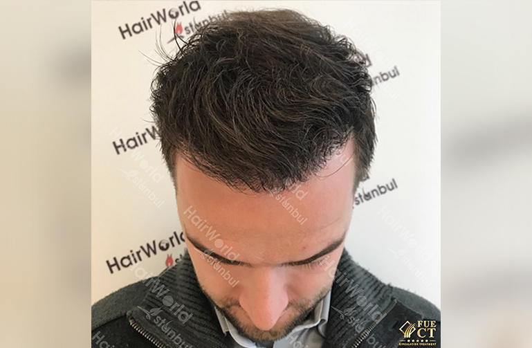 Ervaring Hairworld Istanbu After4