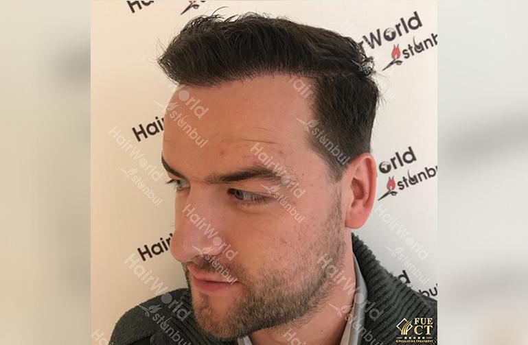 Ervaring Hairworld Istanbu After6