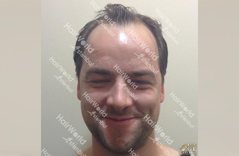 Ervaring Hairworld Istanbu before1
