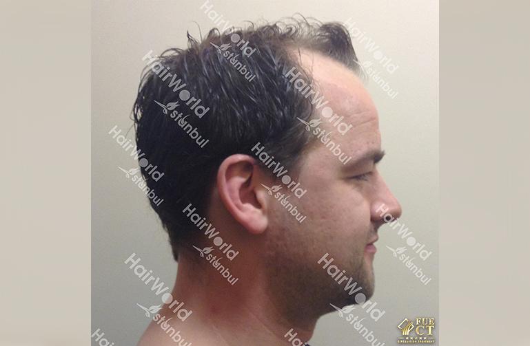 Ervaring Hairworld Istanbu before7