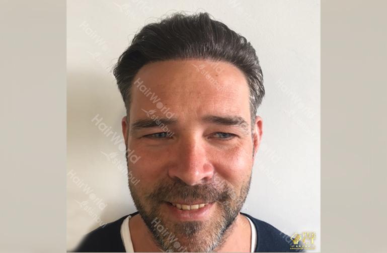 Ervaring Hairworld Istanbu2
