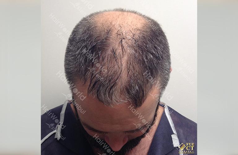 Ervaring Hairworld Istanbu3