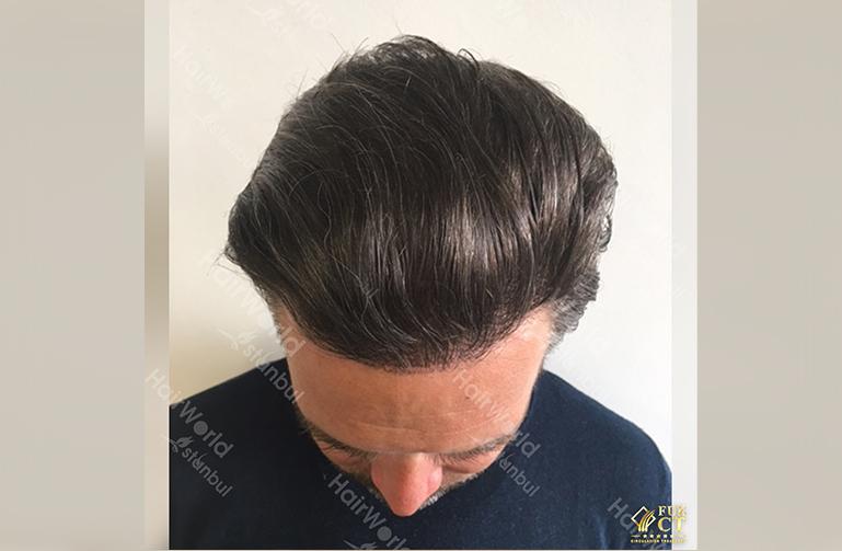 Ervaring Hairworld Istanbu4