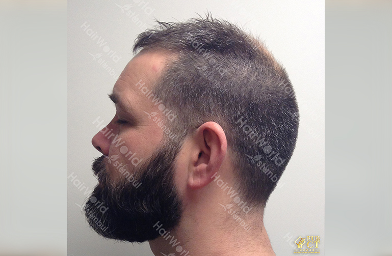 Ervaring Hairworld Istanbu5