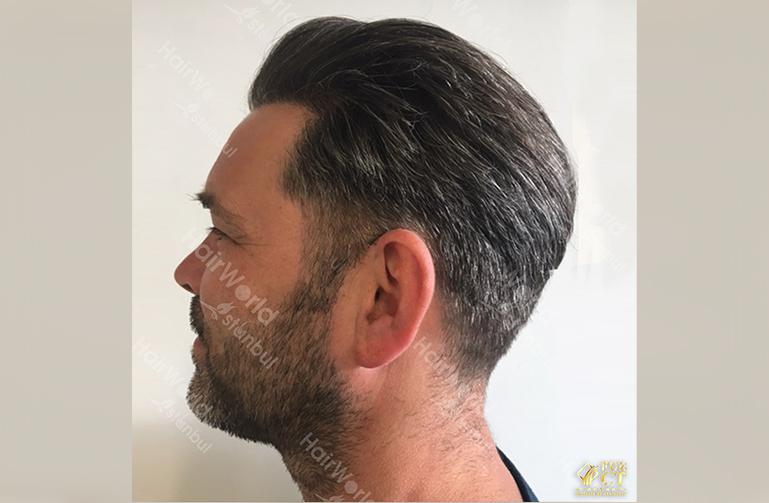 Ervaring Hairworld Istanbu6